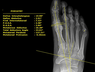 Complete Podiatry Digital X Ray System With High Frequency